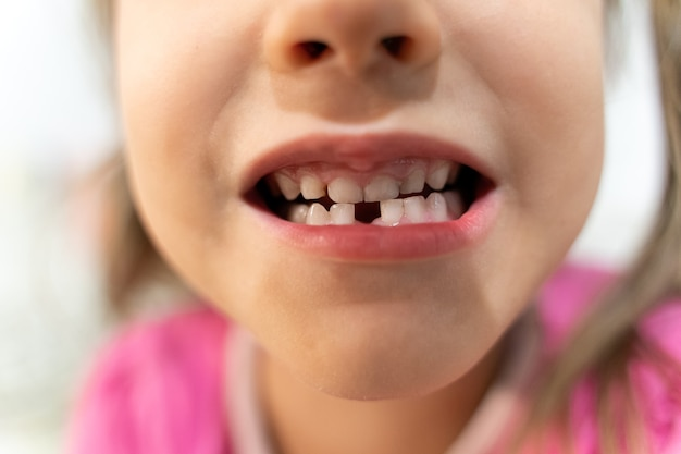 La petite fille change de dents