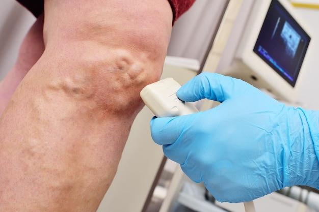 Un phlébologue ou un chirurgien vasculaire effectue un examen échographique des veines du patient.