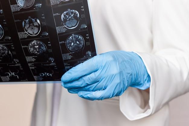 Photo recadrée d'une irm du cerveau par tomographie par ordinateur dans les mains des médecins
