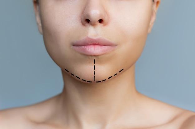 Photo recadrée d'une jeune femme de race blanche avec un marquage sur son menton concept de chirurgie plastique du visage