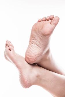 Pied féminin avec pédicure et peau trop sèche et trop sèche