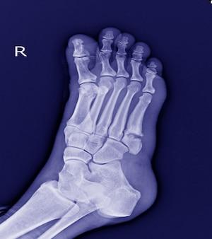 Pied x-ray: 5ème fracture de la base métatarsienne petit os.fracture pied.