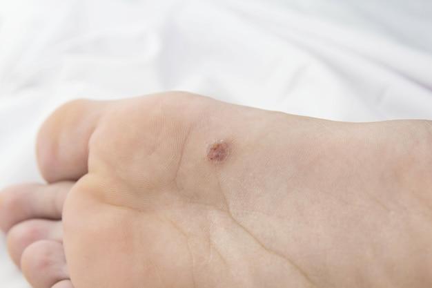 Pied avec des zones à problèmes sur la peau.