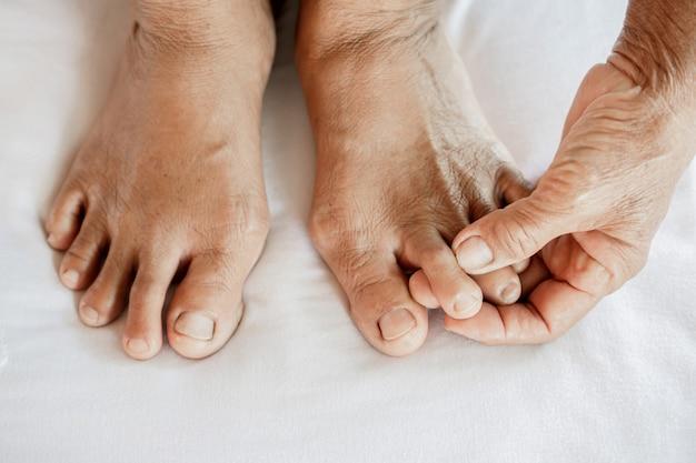 Pieds de femme souffrant de douleurs articulaires