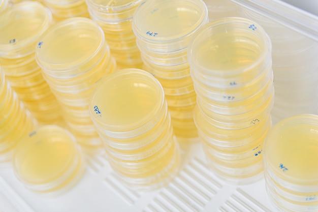 Pile de boîtes de pétri avec des cultures dans les algues agar.