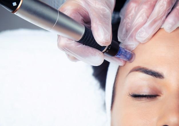 Plan d'un cosmétologue faisant une injection de mésothérapie avec du dermapen sur le visage pour le rajeunissement du centre de spa.
