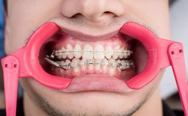 Plan macro sur des dents blanches avec des appareils orthodontiques et un écarteur dentaire au cabinet dentaire. un traitement orthodontique. dentisterie
