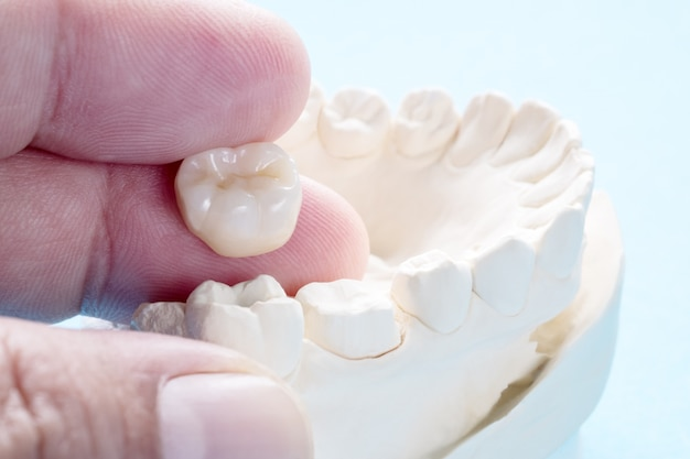 Plan rapproché / prosthodontie ou équipement prothétique / couronne et pont et restauration rapide de modèle.