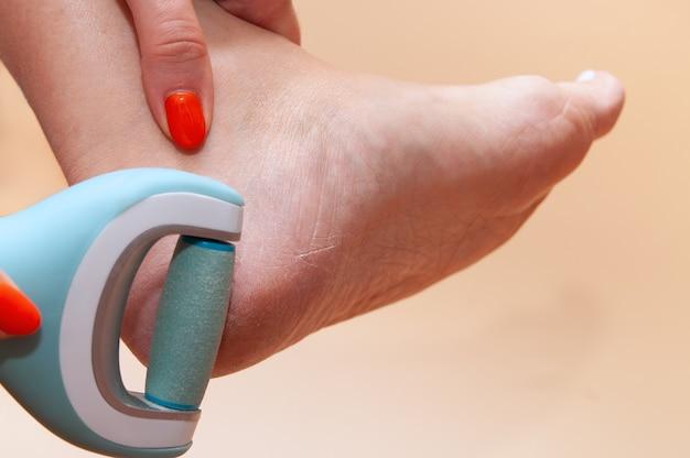 Plan rapproché des soins et du nettoyage des pieds de femme de la peau squameuse rugueuse