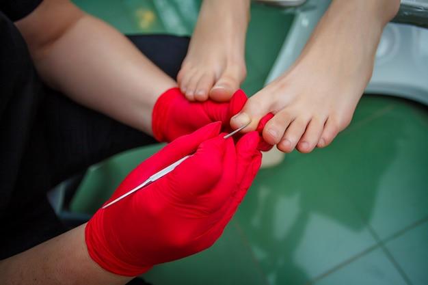 Podiatre traitant les champignons des ongles des pieds. traitement de podologie.