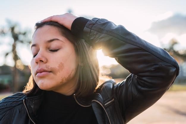 Portrait d'une belle adolescente avec une tache de naissance sur son visage, les yeux fermés au coucher du soleil.