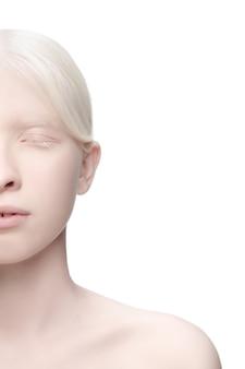 Portrait de belle femme albinos isolé sur blanc
