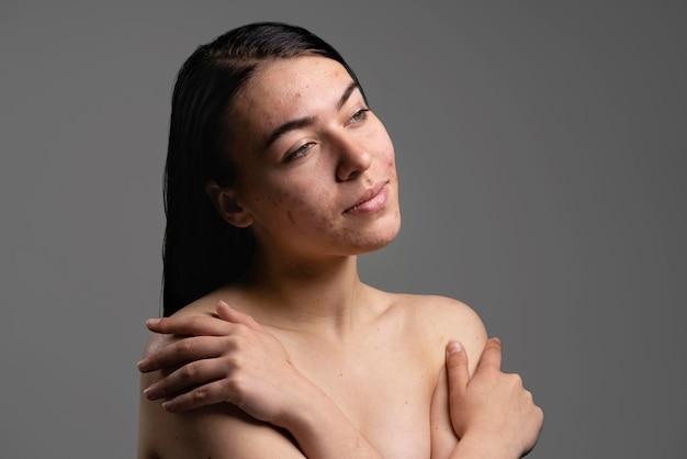 Portrait de la belle jeune femme avec l'acné