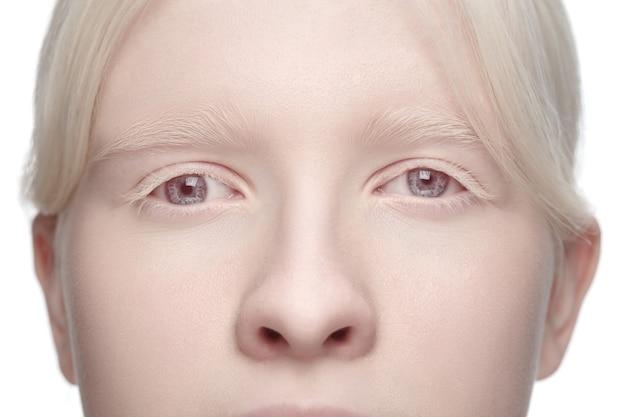 Portrait de culture de belle femme albinos isolée sur fond de studio blanc.