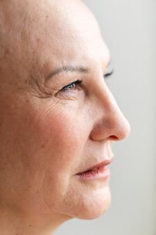 Portrait de femme atteinte d'un cancer de la peau