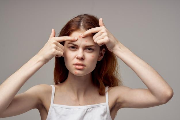 Portrait de femme ayant des problèmes de peau