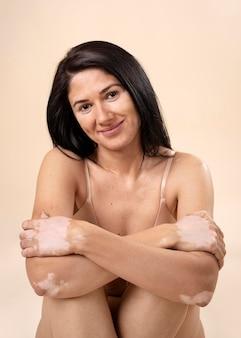 Portrait de femme confiante avec le vitiligo