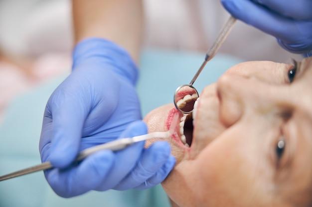 Portrait en gros plan d'une bouche humaine ouverte lors d'un examen oral à la clinique professionnelle du dentiste