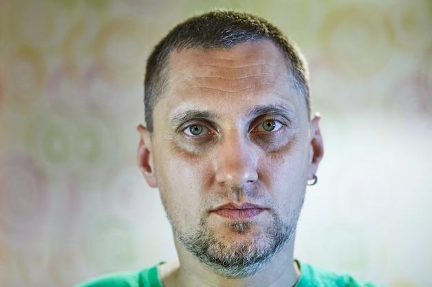 Portrait en gros plan d'un homme de 40 ans avec des signes de dépression de fatigue ou de gueule de bois sur son visage.