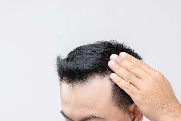 Portrait homme asiatique avec sentiment d'inquiétude et toucher sur sa tête pour montrer la tête chauve ou problème glabre. shoot studio avec espace copie avec mur gris