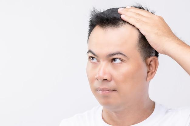 Portrait homme asiatique avec sentiment d'inquiétude et toucher sur sa tête pour montrer la tête chauve ou problème glabre
