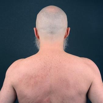 Portrait d'homme chauve avec barbe de dos