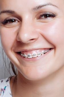 Portrait de jeune femme avec appareil dentaire