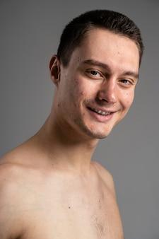 Portrait de jeune homme confiant avec l'acné