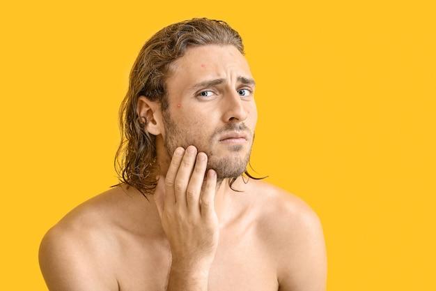 Portrait de jeune homme avec problème d'acné sur jaune