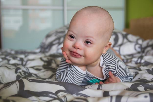 Portrait de mignon petit garçon atteint du syndrome de down