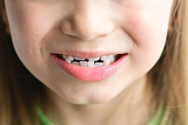 Premières molaires et dents de lait tordues d'enfant portrait souriant de petite fille blonde en gros plan