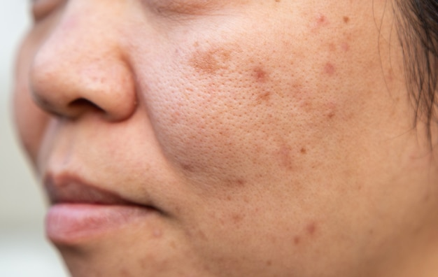 Problèmes de la peau du visage est l'acné et les imperfections.