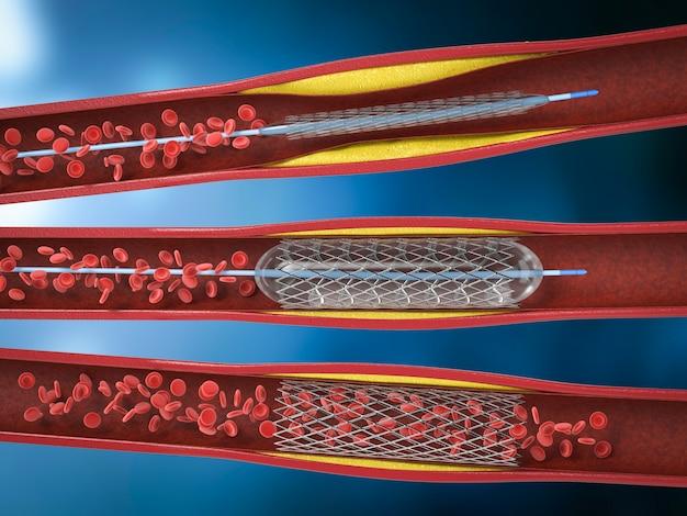 Procédure d'angioplastie par ballonnet de rendu 3d avec stent dans la veine