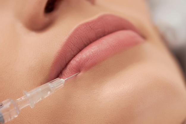 Procédure d'augmentation des lèvres pour la belle jeune femme