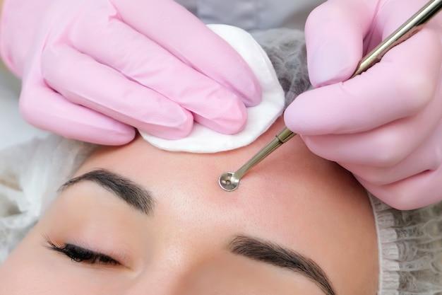 Procédure pour nettoyer la peau du visage avec un appareil en acier avec une cuillère uno contre les points noirs et l'acné.