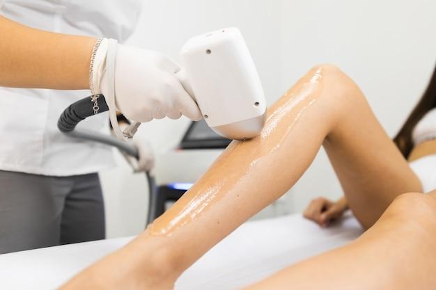 Processus d'épilation au laser pour les jambes de la femme