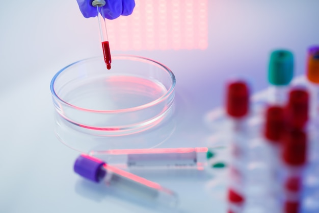 Un professionnel de la santé, un assistant de laboratoire, un médecin effectue une analyse dans un laboratoire, utilise des tubes à essai, une pipette et une boîte de pétri pour détecter la présence de bactéries dans le corps humain