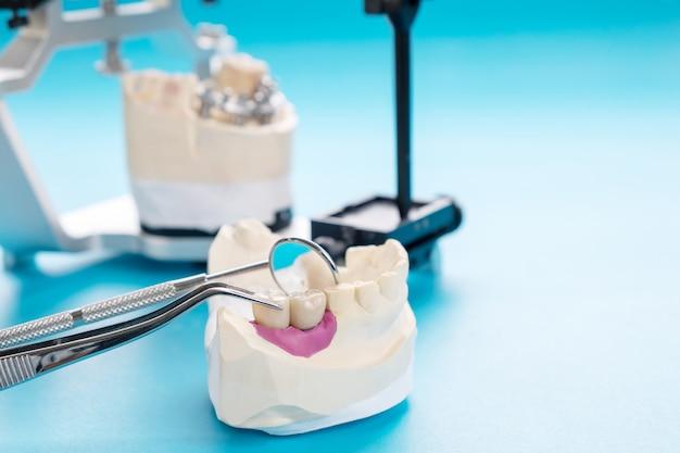 Prosthodontie implantaire