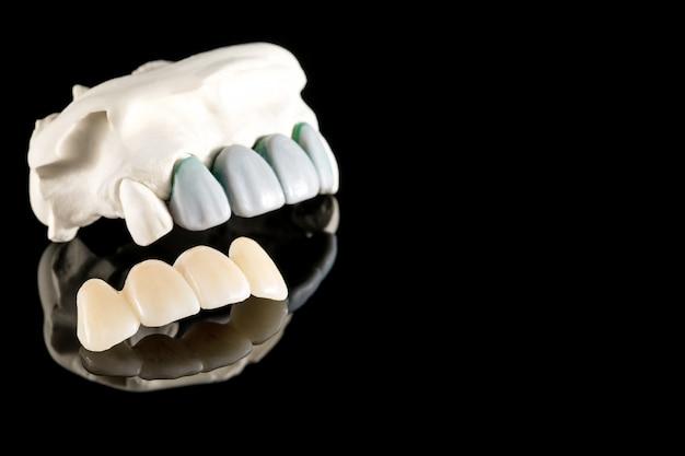 Prosthodontie ou prothèse