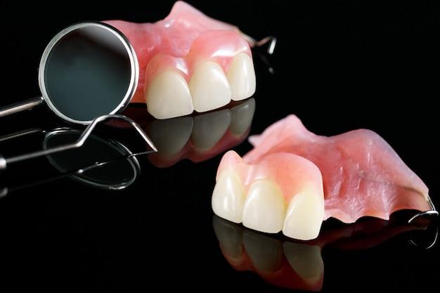 Prothèse dentaire isolatique - face supérieure de la prothèse partielle.