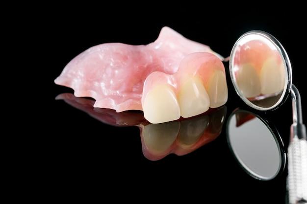 Prothèse dentaire isolatique - partie supérieure de la prothèse partielle.