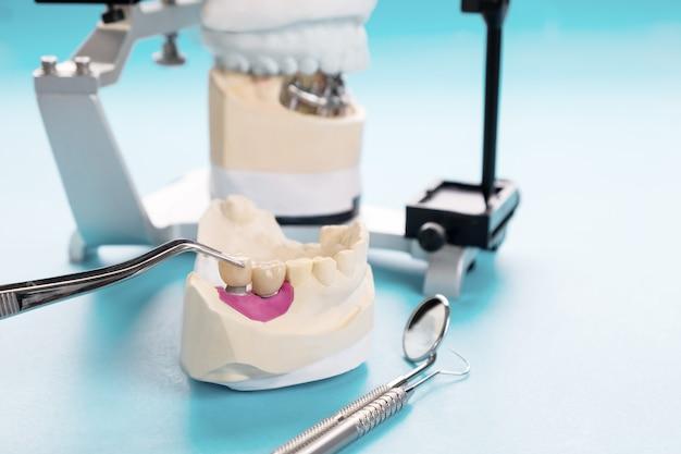 Prothèse implantaire ou prothétique