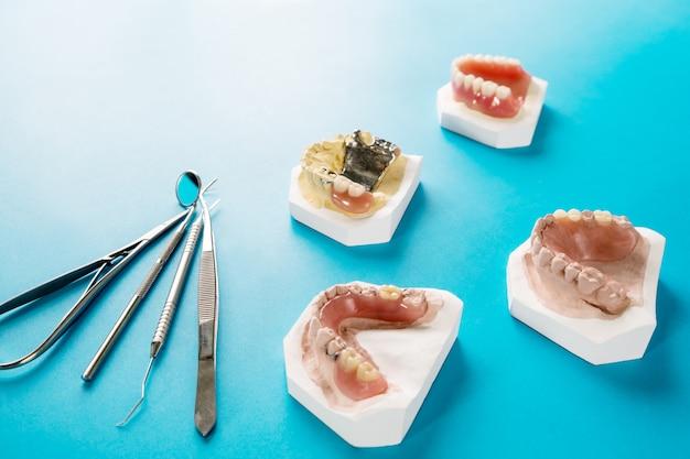 Prothèse partielle amovible artificielle ou prothèse partielle temporaire sur fond bleu.