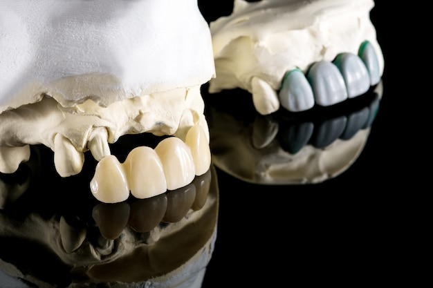 Prothèses dentaires ou prothétiques