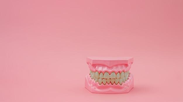 Prothèses dentaires sur une surface rose pastel