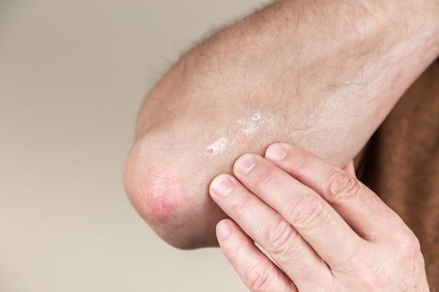 Psoriasis sur le coude. gros plan dermatite sur la peau malade éruption cutanée allergique dermatite eczéma du patient dermatite atopique symptôme peau détail texture, dermatologie concept de champignon, traitement fongique et fongique