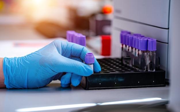 Rack de tests de tubes de sang pour analyse en laboratoire d'hématologie. diagnostic de pneumonie. identification du covid-19 et du coronavirus. pandémie. aide dans les égratignures.