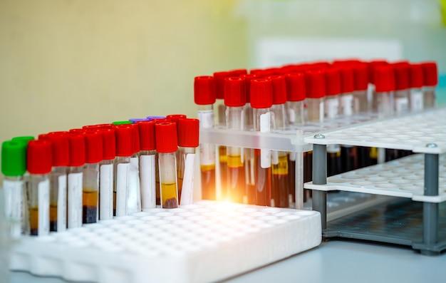 Rack de tests de tubes de sang pour analyse en laboratoire d'hématologie. laboratoire de sang. test de maladie. test d'urgence. infection virale.