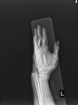 Radiographie articulation du poignet gauche fracture avec déplacement du radius gauche.