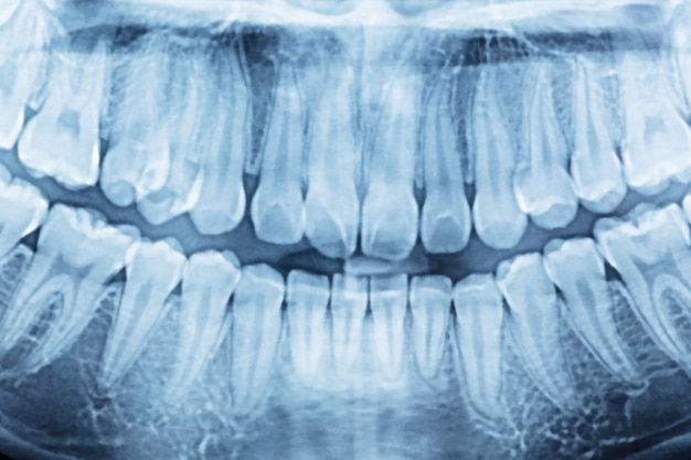 Radiographie dentaire panoramique d'un élévateur de bouche et du côté droit.
